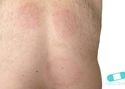 Lyme disease (03) back [ICD-10 A69.20]