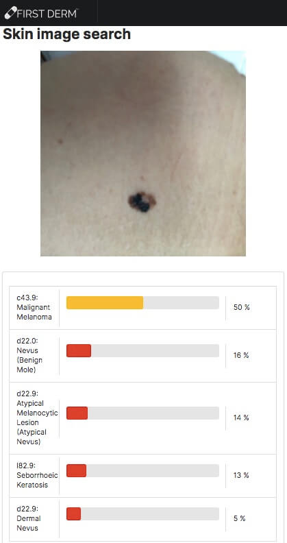 Machine Learning (ML) dermatology Malignant Melanoma image turned 180 AI