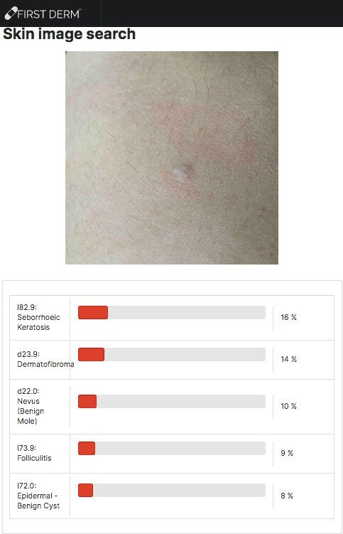 Machine Learning (ML) dermatology SEBORRHEIC KERATOSIS turned 180 degrees_AI