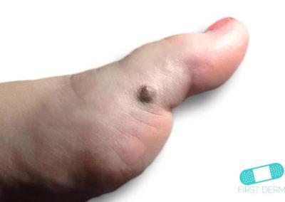 Malignant Melanoma (03) toe foot [ICD-10 C43.9]