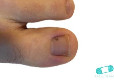Malignant Melanoma (07) toe [ICD-10 C43.9]