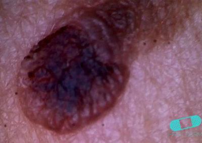 Malignant Melanoma (17) hair [ICD-10 C43.9]