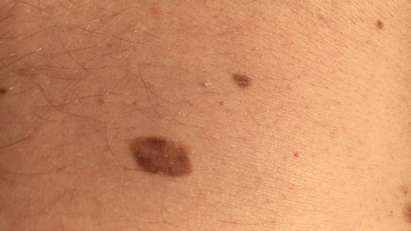 Friend malignant melanoma in situ chest 42 year old male Sweden close up