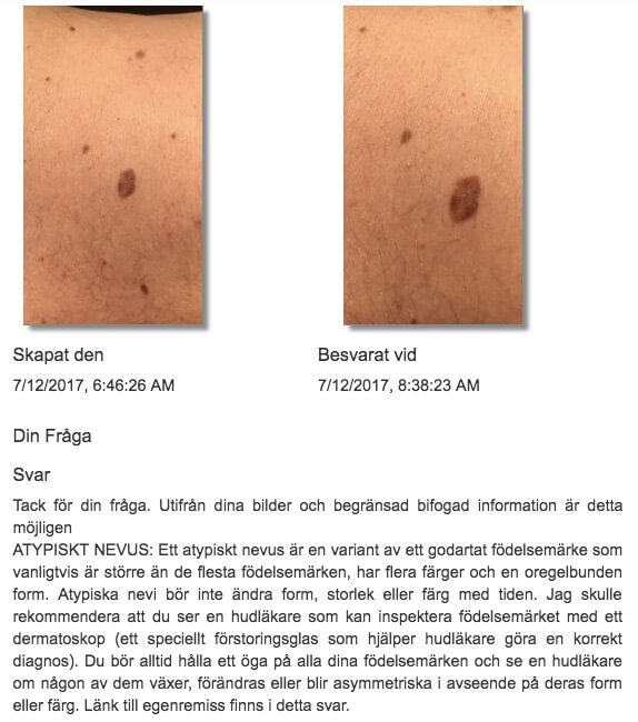 Friend malignant melanoma in situ chest 42 year old male Sweden view case