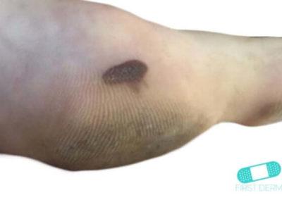 Malignt melanom (05) fot [ICD-10 C43.9]