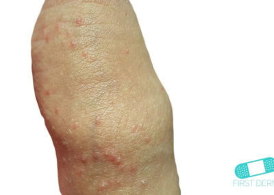 Manchas de Fordyce (Glándula Sebácea Visible) (02) pene [ICD-10 Q38.6]