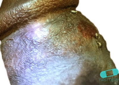 Manchas de Fordyce (Glándula Sebácea Visible) (06) pene [ICD-10 Q38.6]
