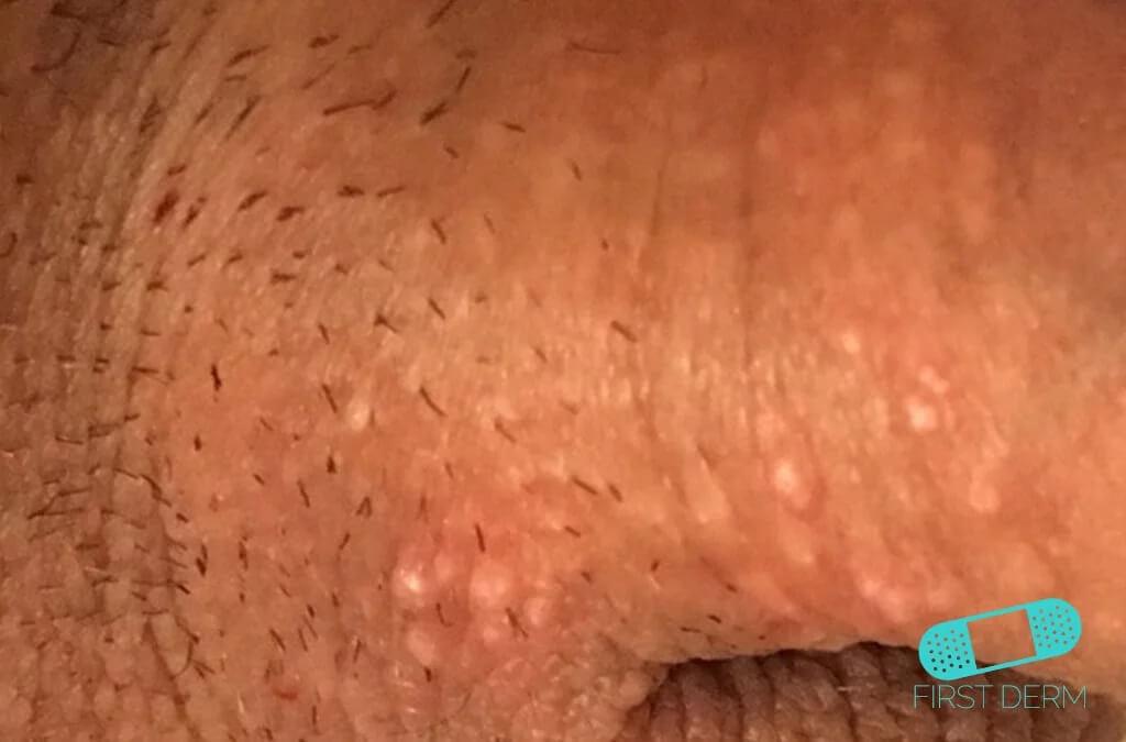 Porn of small korean girls in