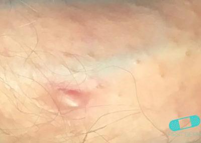 Manchas de Fordyce (Glándula Sebácea Visible) (14) pene [ICD-10 Q38.6]