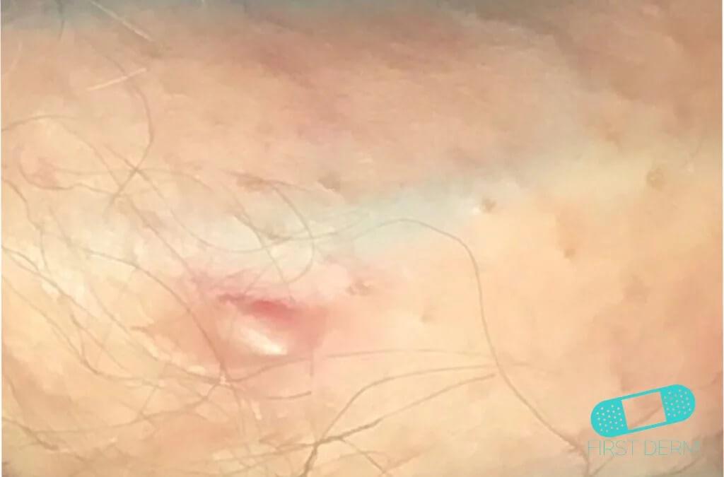 Excelente Anatomía De La Piel Del Pene Friso - Anatomía de Las ...