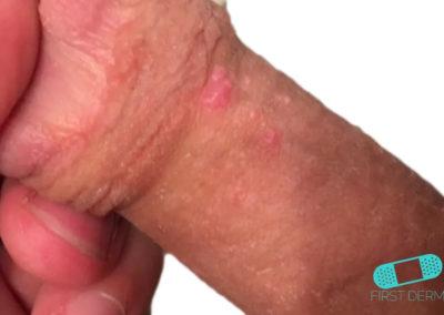 Manchas de Fordyce (Glándula Sebácea Visible) (16) pene [ICD-10 Q38.6]