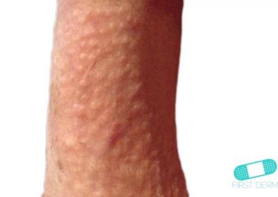 Manchas de Fordyce (Glándula Sebácea Visible) (17) pene [ICD-10 Q38.6]