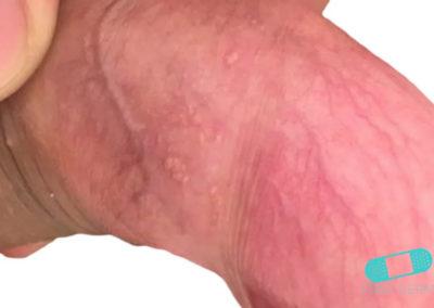 Manchas de Fordyce (Glándula Sebácea Visible) (18) pene [ICD-10 Q38.6]