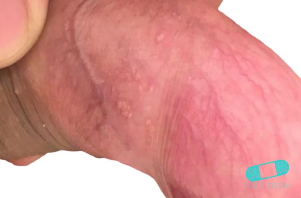 manchas rojas en el cuerpo del pene