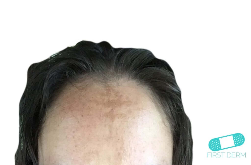 Melasma (Chloasma) (01) head man [ICD-10 L81.1]