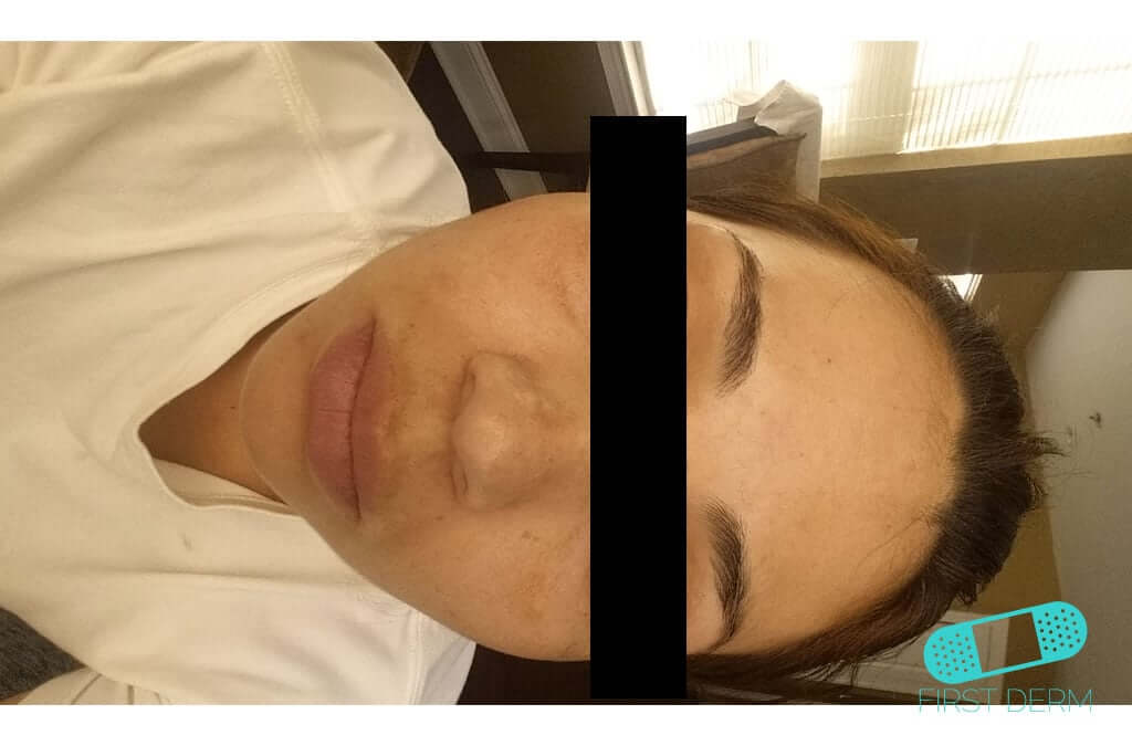 Melasma (Chloasma) (02) forehead woman [ICD-10 L81.1]