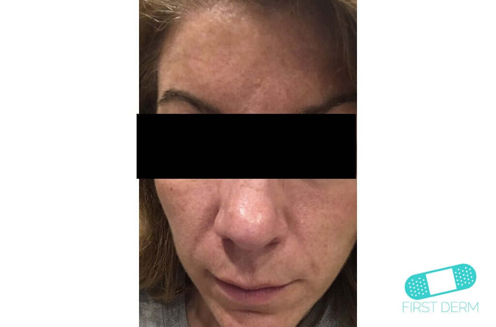 Melasma (Chloasma) (03) face woman [ICD-10 L81.1]
