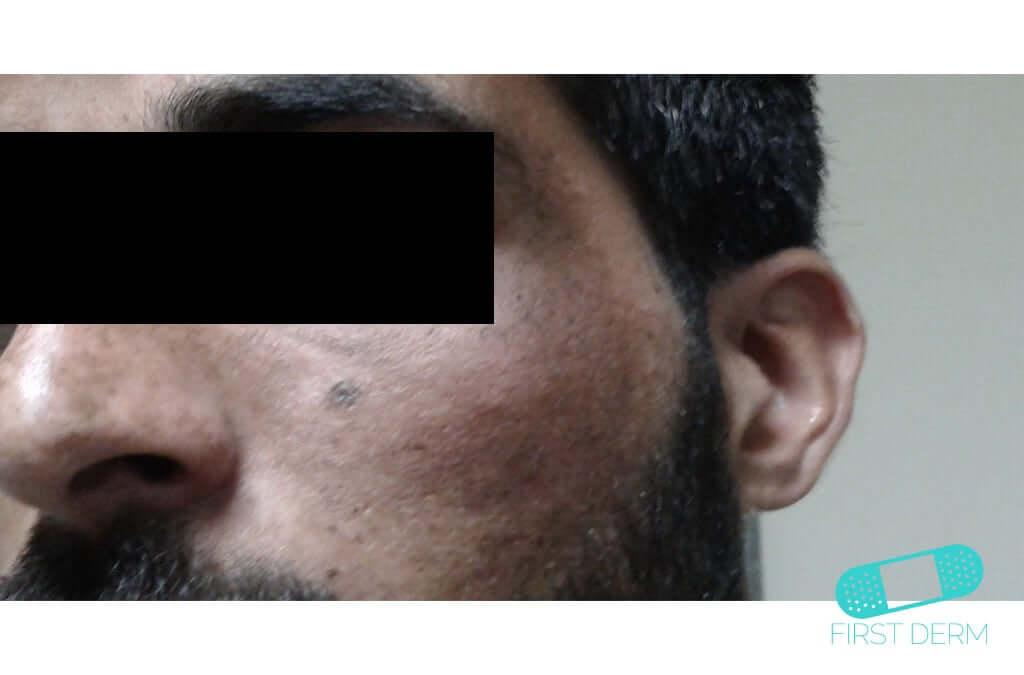 Melasma (Chloasma) (04) cheek [ICD-10 L81.1]