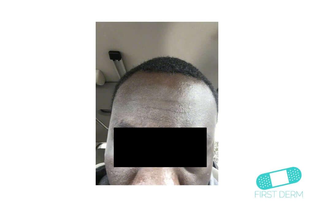 Melasma (Chloasma) (07) forehead man [ICD-10 L81.1]