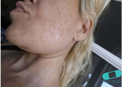Melasma (Chloasma) (08) cheek woman [ICD-10 L81.1]