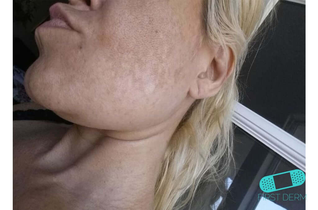 Melasma (Chloasma) (08) cheek woman [ICD-10 L81.1]