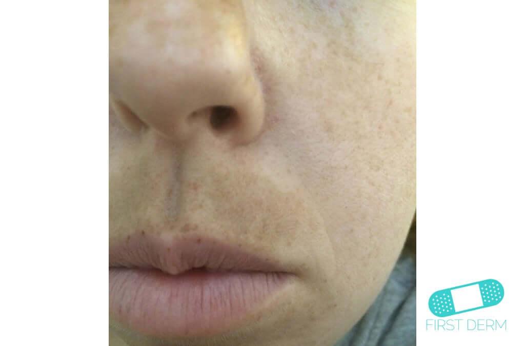 Melasma (Chloasma) (09) face woman [ICD-10 L81.1]