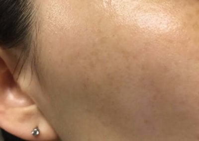 Melasma (Chloasma) (10) cheek woman [ICD-10 L81.1]
