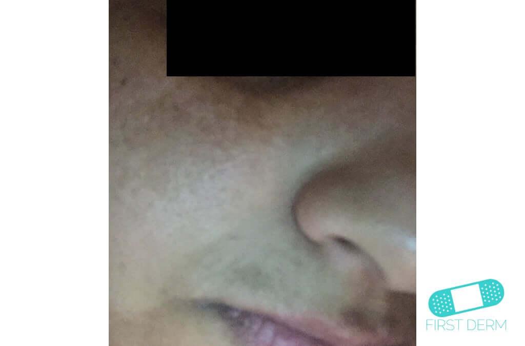 Melasma (Chloasma) (11) cheek face [ICD-10 L81.1]