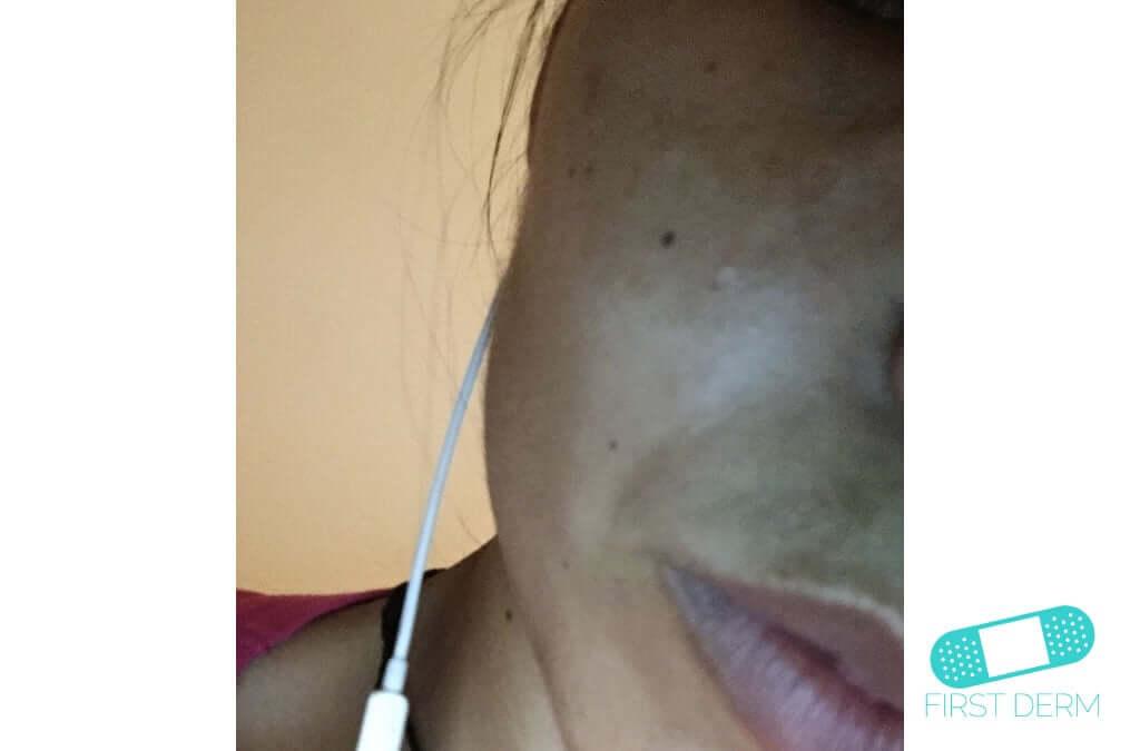 Melasma (Chloasma) (12) cheek face [ICD-10 L81.1]