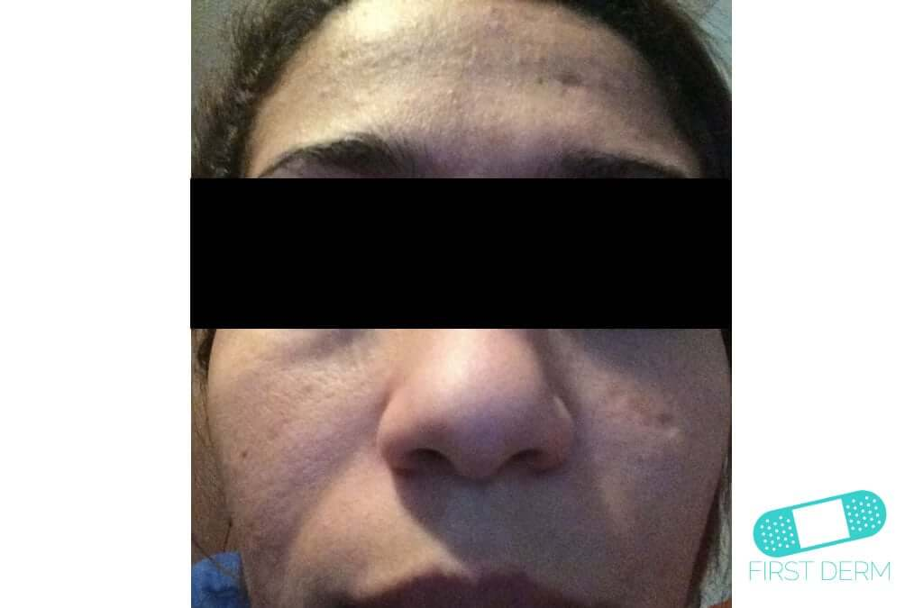 Melasma (Chloasma) (13) face woman [ICD-10 L81.1]