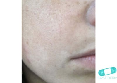 Melasma (Chloasma) (14) cheek woman [ICD-10 L81.1]