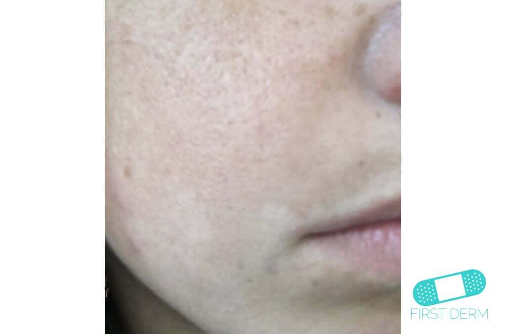 Melasma (Chloasma) (14) cheek woman [ICD-10 L81.1]