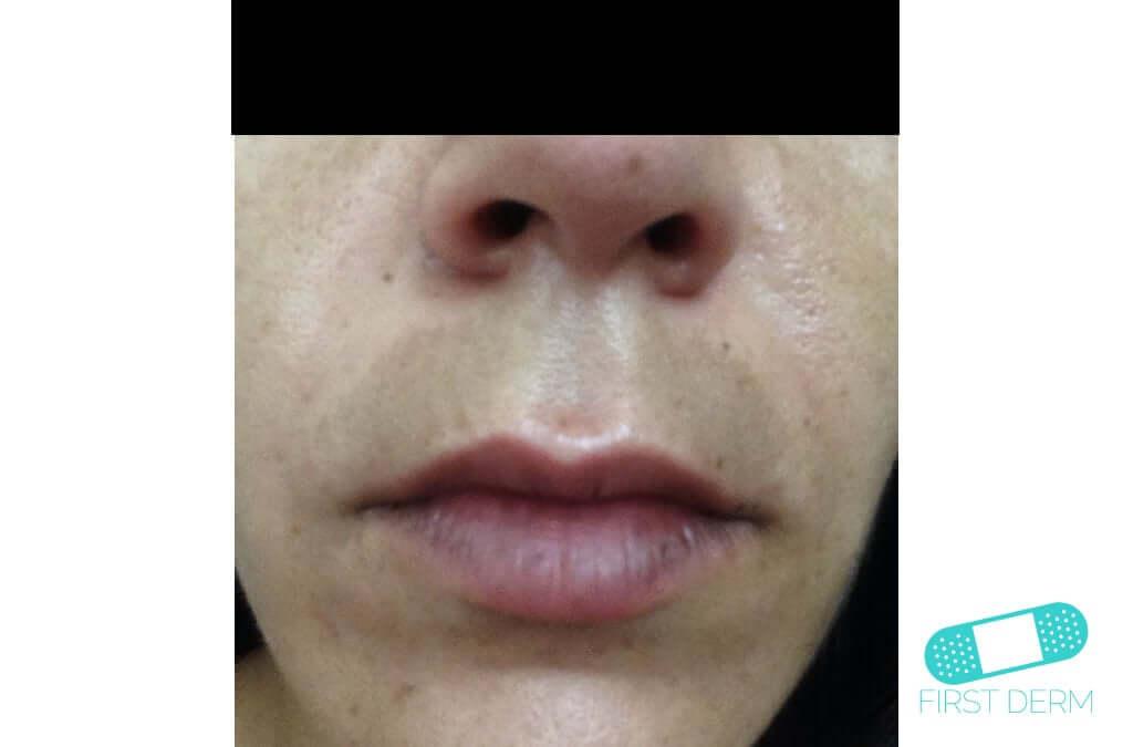 Melasma (Chloasma) (15) face woman [ICD-10 L81.1]