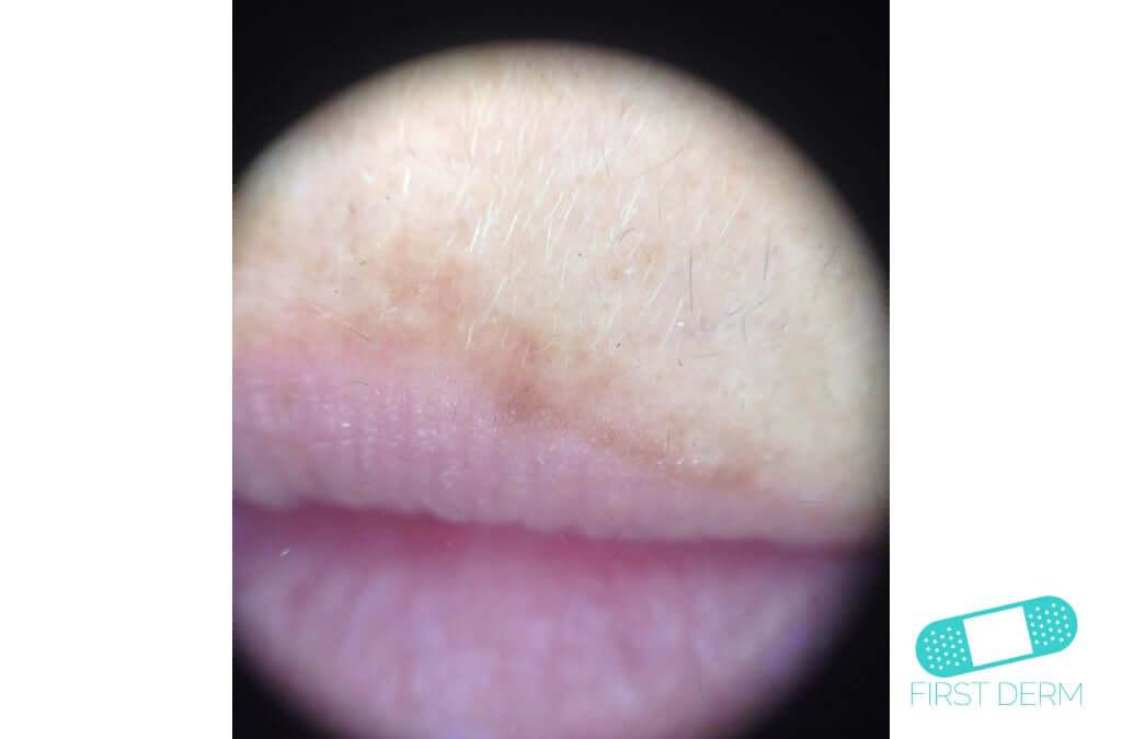 Melasma (Chloasma) (16) lips woman [ICD-10 L81.1]