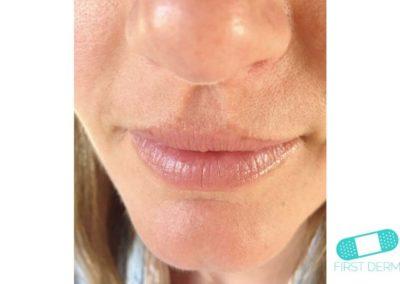 Melasma (Chloasma) (18) lips woman [ICD-10 L81.1]