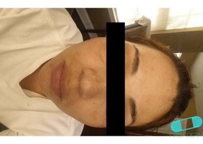 Melasma (kloasma) (02) panna kvinnor [ICD-10 L81.1]