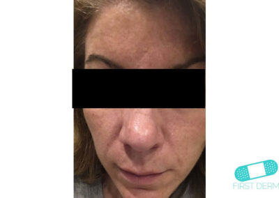 Melasma (kloasma) (03) ansikte kvinna [ICD-10 L81.1]