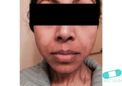 Melasma (kloasma) (05) ansikte kvinna [ICD-10 L81.1]