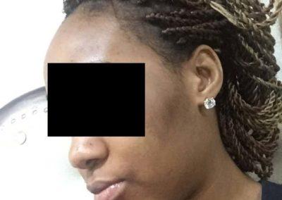 Melasma (kloasma) (06) ansikte [ICD-10 L81.1]