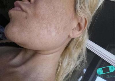 Melasma (kloasma) (08) kind kvinnor [ICD-10 L81.1]