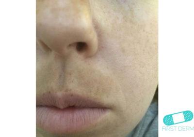 Melasma (kloasma) (09) ansikte kvinnor [ICD-10 L81.1]