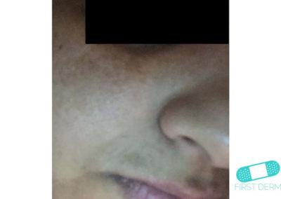 Melasma (kloasma) (11) kind ansikte [ICD-10 L81.1]