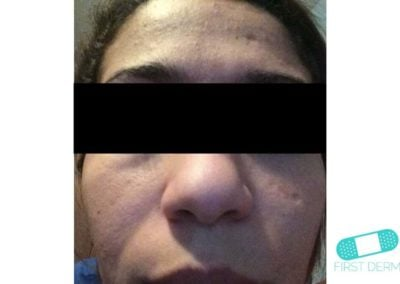 Melasma (kloasma) (13) ansikte kvinnor[ICD-10 L81.1]