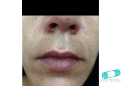 Melasma (kloasma) (15) ansikte kvinnor [ICD-10 L81.1]
