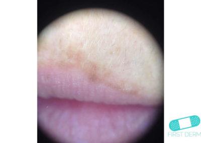 Melasma (kloasma) (16) läppar dermatoskop [ICD-10 L81.1]