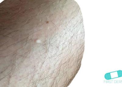 Milia (Acné del Bebé) (01) piel [ICD-10 L57.0]