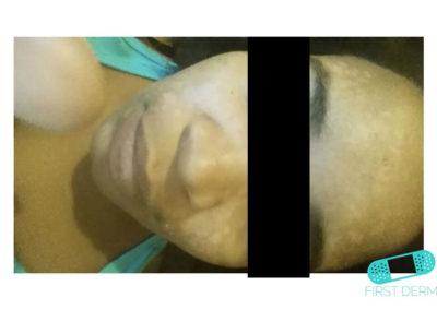 Mjölkskorv (seborroiskt eksem) (06) ansikte [ICD-10 L21.0]