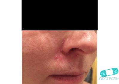 Mjölkskorv (seborroiskt eksem) (10) näsa [ICD-10 L21.0]