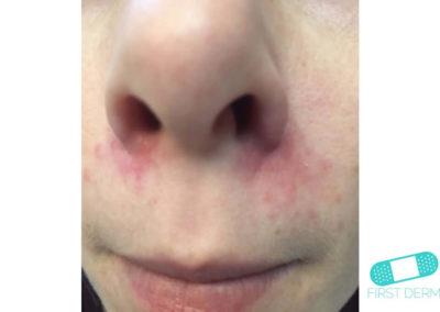 Mjölkskorv (seborroiskt eksem) (14) näsa [ICD-10 L21.0]