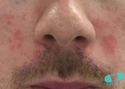 Mjölkskorv (seborroiskt eksem) (17) näsa [ICD-10 L21.0]
